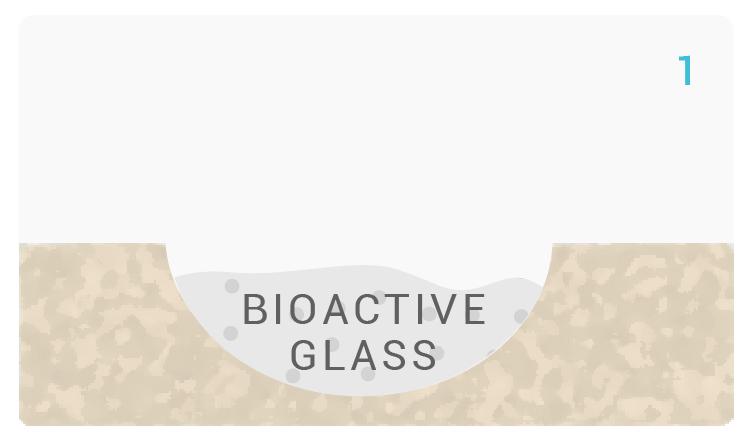noraker_schema_bioglass_synthes3d_v4-01