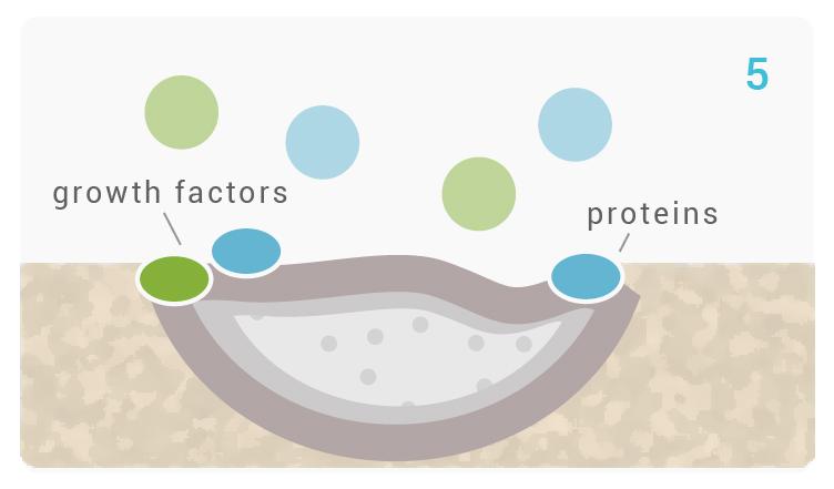 noraker_schema_bioglass_synthes3d_v4-05